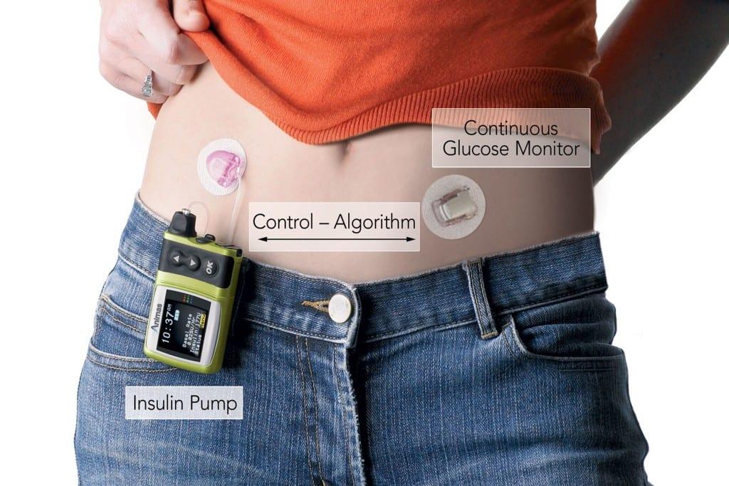 Diabetes: Is the Artificial Pancreas a Diabetes Cure?